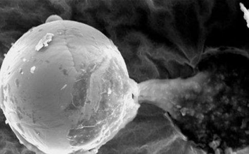 Una microcápsula libera esporas extraterrestres