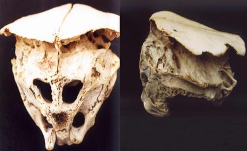 El cráneo de Rhodope