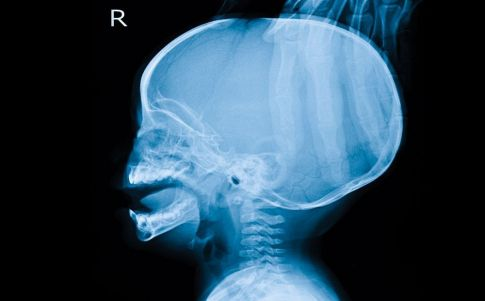 genios solo mitad cerebro